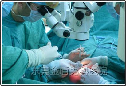 静脉曲张手术