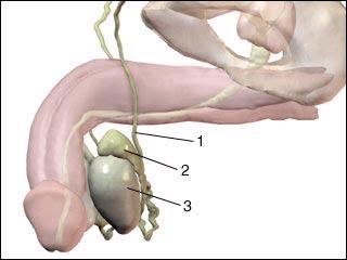 睾丸炎_睾丸炎的预防方法有哪些_东莞金盾男性医院